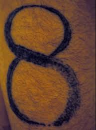 arlington tattoo removal service laser treatments garland tx