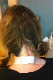 can you color hair after brain surgery 36 best chiari malformation images on pinterest chiari