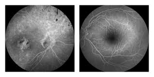 History Of Blindness A 40 Year Old Woman With A History Of Mild Night Blindness And