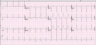 strain pattern ecg meaning dr smith s ecg blog hyperacute t waves anterior stemi no lvh