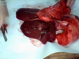 Heart Anatomy Youtube 38 Best Respiratory System Images On Pinterest Respiratory