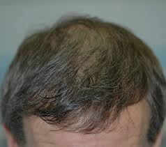 57year old hair color patient photos videos dr robin unger hair transplant