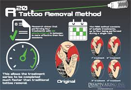 the r20 method of removing tattoo visual ly
