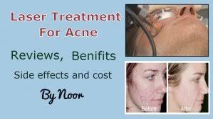 blue light for acne side effects laser treatment for acne reviews benifits side effects and cost