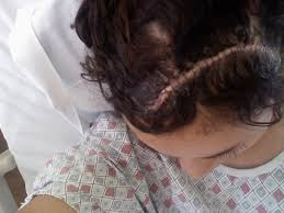 can you color hair after brain surgery photos