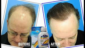 hair loss cure who is likely candidate for hair loss stop hair loss
