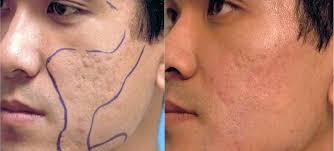 light therapy for acne scars tasranselmop a topnotch wordpress com site