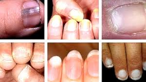 characteristics of nails that are linked to serious health