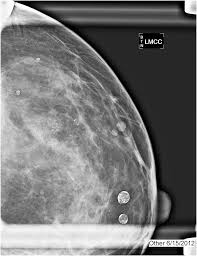 mri guided biopsy breast minimally invasive breast biopsy the breast imager u0027s perspective