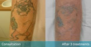 tasmanian devil tattoo removal bromley avalon laser u0026 beauty clinic