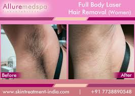 how much does laser hair removal cost on back full body laser hair removal for women information cost clinics