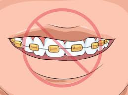 how to choose the color of your braces 14 steps with pictures
