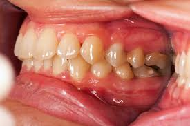 gum infection trusted health resources