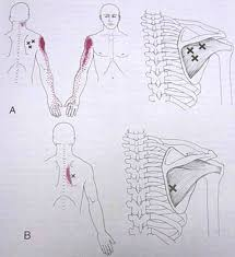 How To Palpate Subscapularis Subscapularis Trigger Points Intentional Living
