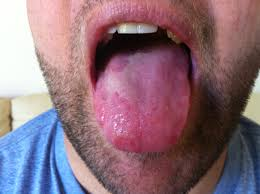 Candida And Hair Loss Love Your Spleen U2013 Tcm Tongue Diagnosis And Case Study Foodiecure