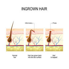 types of ingrown hair ingrown hair on scalp symptoms treatment cure curehacks com