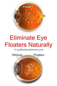 bright flashes of light in eye eye floaters flashes and blurred vision do floaters cause eye