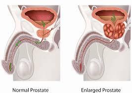 green light laser prostate surgery cost benign prostatic hyperplasia bph