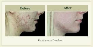 blu light therapy for acne blu u blue light photodynamic acne therapy winston salem