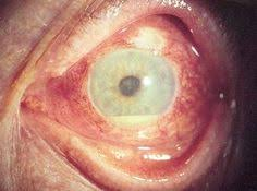 eye pain from light symptoms and signs of uveitis include redness irritation blurred