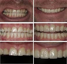 worn teeth the smile spa dental practice stockton middlesbrough