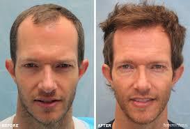 hair plugs for men hair transplant nyc hair restoration new york