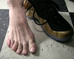 danny garcia reveals he has six toes daily mail online
