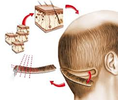 fut hong kong hair transplant fut procedures hair transplant in visakhapatnam india