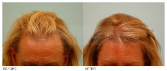 rogaine for women success stories hair loss in women what can be done