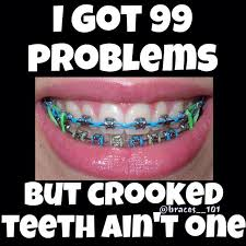 Orthodontist Meme - brace face meme funny image photo joke 13 quotesbae