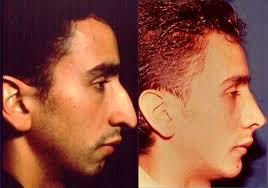 imagenes para perfil de jovenes cirugía estética para jóvenes dr santiago umaña