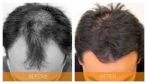 hair plugs for men neograft hair transplant for men nashville hair doctor
