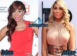 tamar braxton nose job before after celebrity plastic surgery news page 2 scoop it