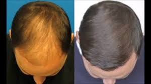 what gets rid of dht in body how to get my hair to grow back how to get rid of dht hair loss