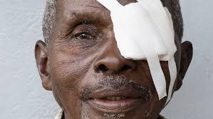 Christmas Tree Cataract Surgery by Sightsavers Homepage Sightsavers