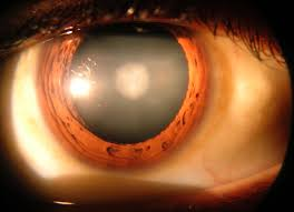 Cataract Wikipedia