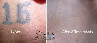 advanced laser tattoo removal laser tattoo removal in las vegas