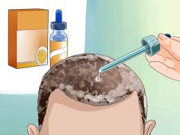 Can Wearing Hats Cause Hair Loss 3 Ways To Hide Baldness Wikihow