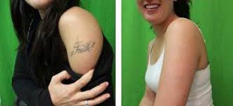 tattoo removal los angeles tattoo collections