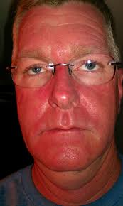 blue and red light therapy for acne reviews cool blue light therapy at home exquisite decoration best devices