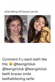 Braces Off Meme - what taking off braces can do comment if u want teeth like this