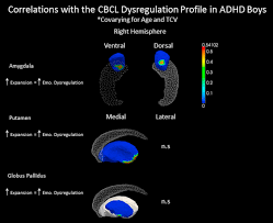 anomalous subcortical morphology in boys but not girls with adhd