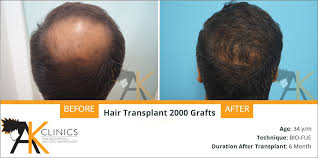 hair transplant month by month pictures 2000 grafts hair transplant surgery result after 6 months