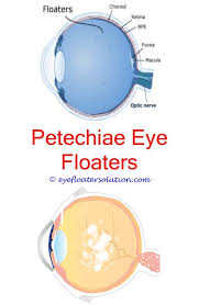 eye pain from light blood floaters in eye taurine supplements for eye floaters eye