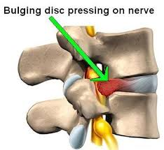 best pillow for a bulging disc in your neck the word