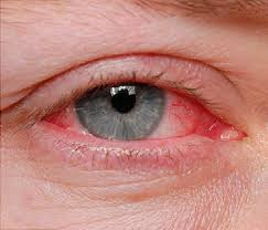 How Is Color Blindness Caused Pinkeye Causes And Treatments