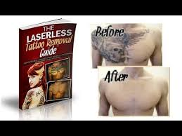 the laserless tattoo removal guide review does it work youtube