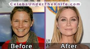 how to grow out layered women s hair into bob the 25 best jennifer nettles plastic surgery ideas on pinterest