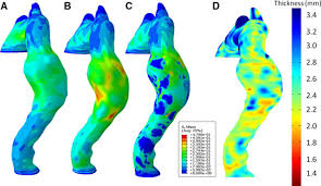 impact of wall thickness and saccular geometry on the download figure