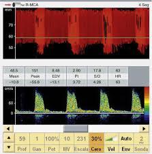 transcranial doppler ultrasound in the diagnosis of brain death